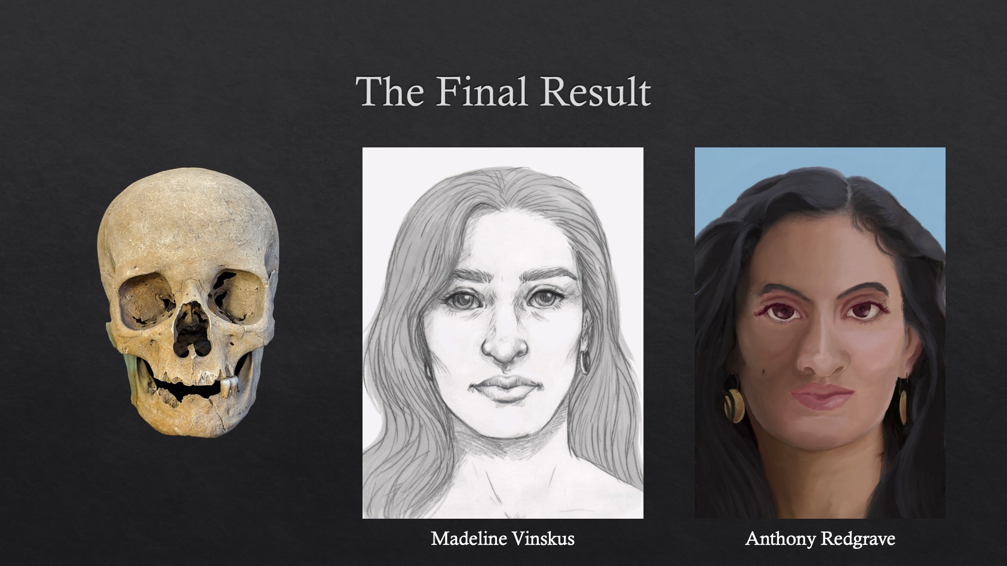 Anthony Redgrave's approximation was included in 'Caesarea Maritima: Facial Approximation' by Lilia Vinskus, in collaboration with Madeline Vinskus (presentation at University of New Hampshire 2019)